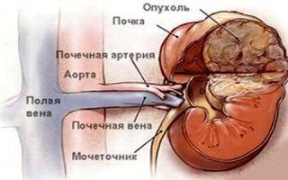 Гемартрома или ангиомиолипома правой почки: симптомы и признаки