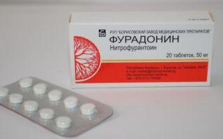 Таблетки от воспаления мочевого пузыря у женщин — как принимать правильно