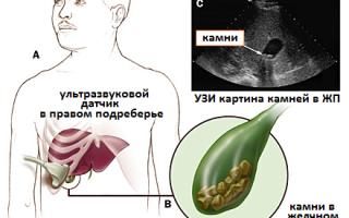 Желчный пузырь: размеры, норма у взрослых, виды и причины отклонений