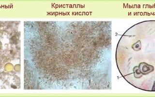 Цвет кала при гепатите: результаты компрограммы и методы коррекции