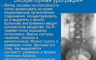 Экскреторная урография почек — правильное проведение