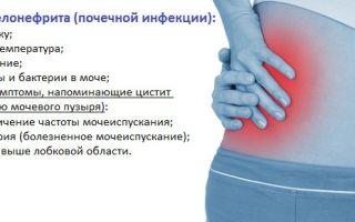 Пиелонефрит у мужчин — симптомы и лечение