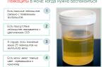 Повышенные лейкоциты в моче — чем грозит и что делать