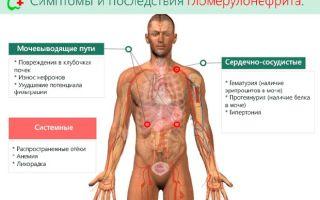 Болезни почек и мочевыводящих путей — причины, симптомы, лечения