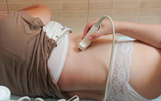 Узи почек при беременности