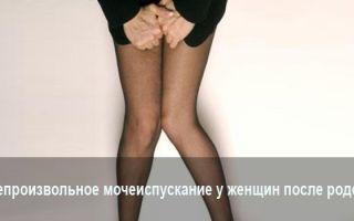 Причины непроизвольного мочеиспускание у женщин