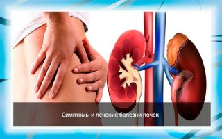 Заболевания почек — симптомы и лечение недуга