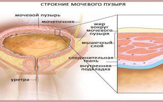 Ацетон в моче у беременных — симптомы и лечение