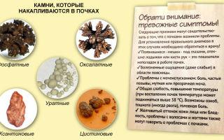 Признаки камней в почках, диагностика и симптоматика