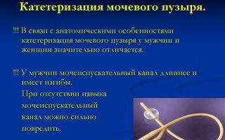 Каким способом осуществляется катетеризация мочевого пузыря