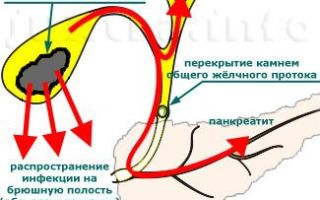 Нарушение оттока желчи: почему пациенты поздно обращаются за помощью