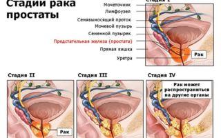 Лечение аденомы простаты у мужчин медикаментозным способом