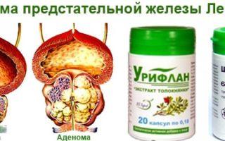 Лечение аденомы простаты без операции — препараты и народные средства