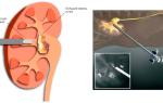 Дробление камней в почках — литотрипсия
