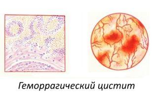Геморрагический цистит у женщин — серьезное заболевание