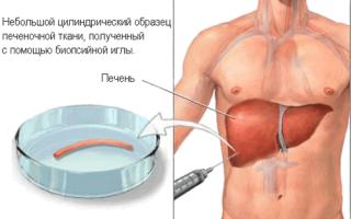 Цирроз и рак печени – это одно и то же или нет
