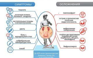 Основные симптомы болезни почек у мужчин