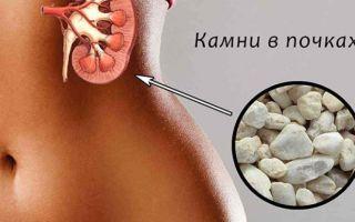 Симптомы камней в почках у женщин и способы лечения