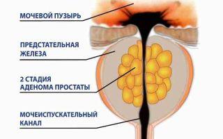 Аденома простаты у мужчин — первые признаки и способы лечения