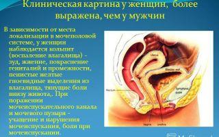 Выделения из уретры у женщин — диагностика и последствия