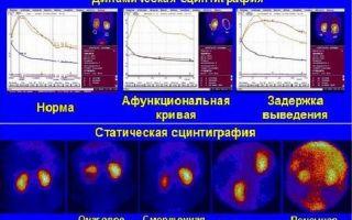 Радиоизотопное исследование почек — о чем говорит и как проводится