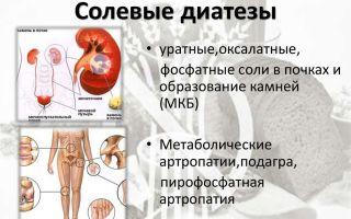 Солевой диатез почек у детей и у взрослых