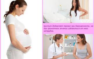 Цистит при беременности — как быстро вылечить
