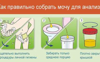 Как собирать анализ мочи по Нечипоренко беременным