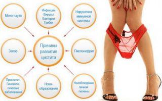 Первые признаки цистита у женщин и его лечение