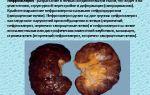 Что такое нефросклероз почек, как лечить