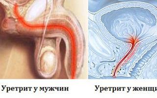 Правильное лечение уретрита: медикаментозные и домашние средства