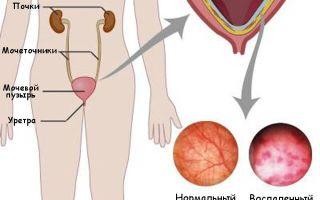 Цистит у мужчин симптомы и лечение лекарствами
