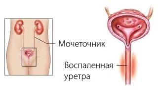 Зуд в мочеиспускательном канале у женщин