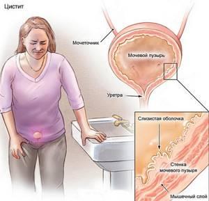 Цистит у мужчин симптомы и лечение лекарства при цистите