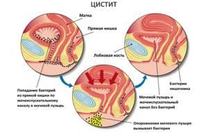 Цистит воспаление мочевого пузыря