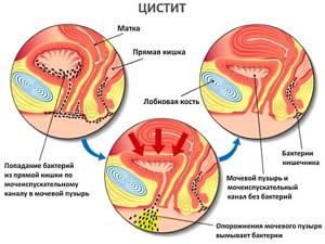 Цистит при беременности: причины, симптомы и методы лечения