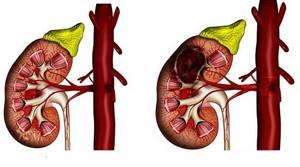 Диффузные изменения паренхимы почек и почечных синусов: основные причины