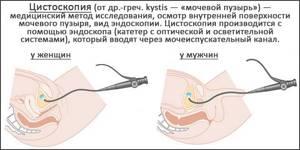 Обследование мочевого пузыря