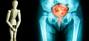 Как лечить гиперактивный мочевой пузырь у мужчин?