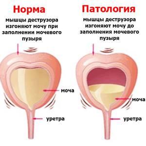 Гиперактивность мочевого пузыря и цистит