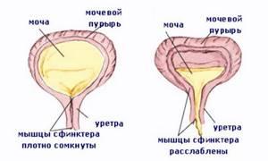 Проблемы с мочевым пузырем у женщин