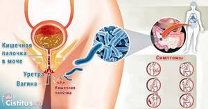 Кишечная палочка - как передается и диагностируется, проявление у детей и взрослых, терапия и профилактика