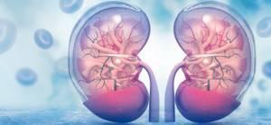 Киста почки - причины и лечение, симптомы кисты