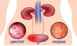 Лечение цистита с кровью у женщин