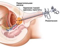 Мужчины с увеличенной простатой получают облегчение симптомов от минимально инвазивного сокращающегося лечения