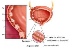 Опухоль в мочевом пузыре: виды, симптомы, диагностика, лечение
