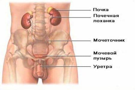 Камни в почках у мужчин и женщин – причины, симптомы и лечение
