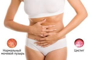Первые признаки цистита лечение и профилактика заболевания