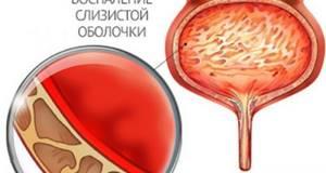 Цистит у девочек: в каком возрасте появляется и как лечить » Урологический портал №1