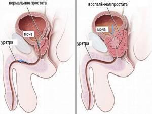 Частые позывы к мочеиспусканию у мужчин лечение